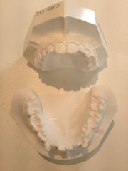 【冬のボーナスが…!】子どもの矯正歯科、検査結果が出ました。